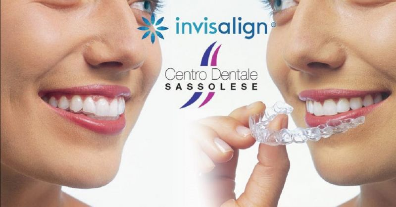 CENTRO DENTALE SASSOLESE offerta apparecchio dentale invisalign - occasione invisalign Sassuolo